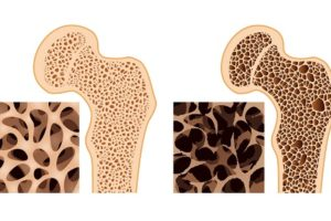 ososteoporosi